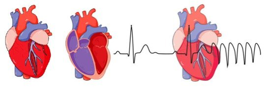 Coronavirus post-effet: plusieurs personnes infectées ont développé des problèmes cardiaques