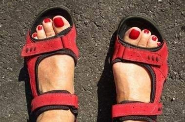 Hémophilie: si vous avez de telles taches sur vos pieds, montrez-les à un médecin!