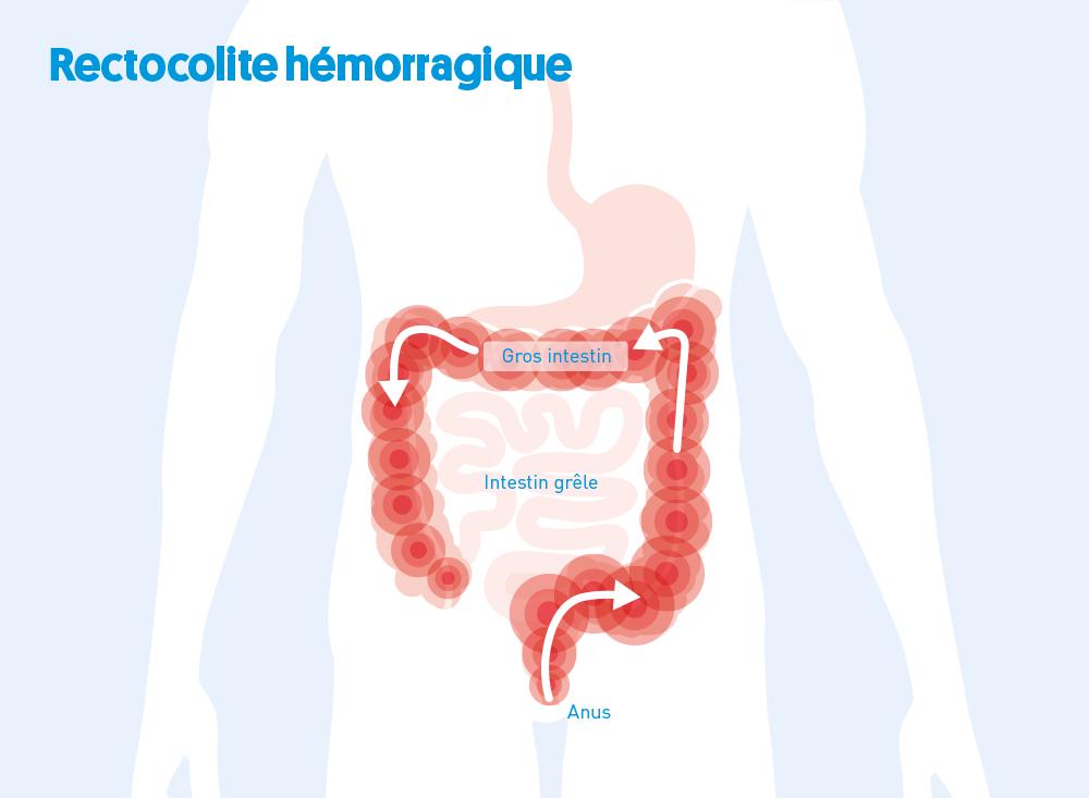 Colite ulcéreuse: Une maladie encore inconnue